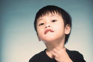 astuces et remèdes contre les maux liés aux allergies